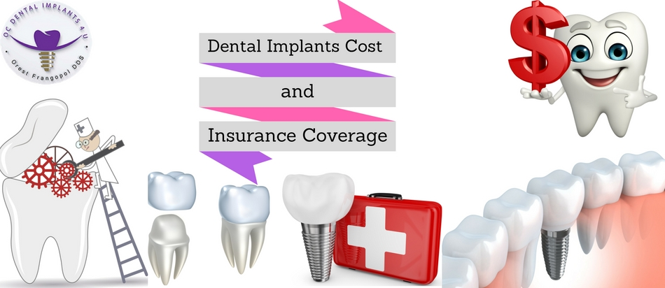 Dental Implants Cost Insurance Coverage