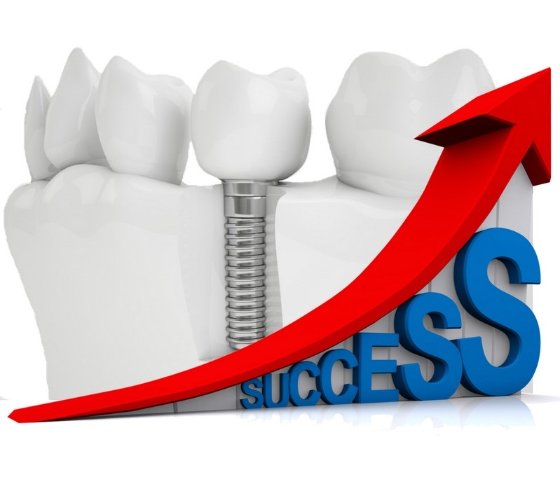 Highest Dental Implants Success Rate