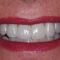Get Perfect Smile at Dental Clinic