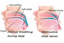 Risks of Sleep Apnea
