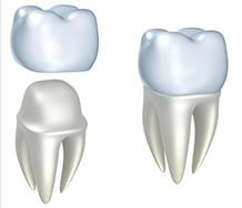 Bone Grafting in Orange County, CA