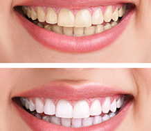Teeth Whitening in Orange County, CA