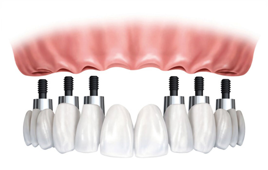 full arch implant bridge