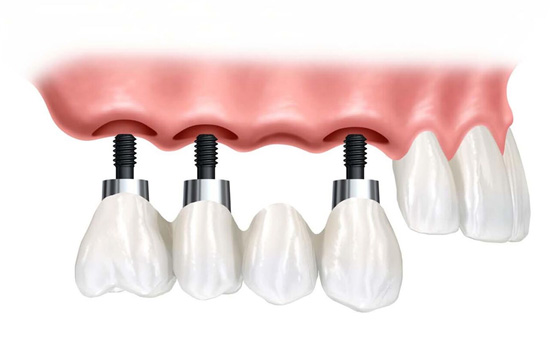 Unilateral Fixed Bridge on Implants